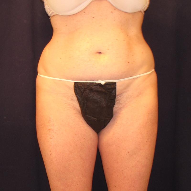 abdomen lovehandle liposuction before