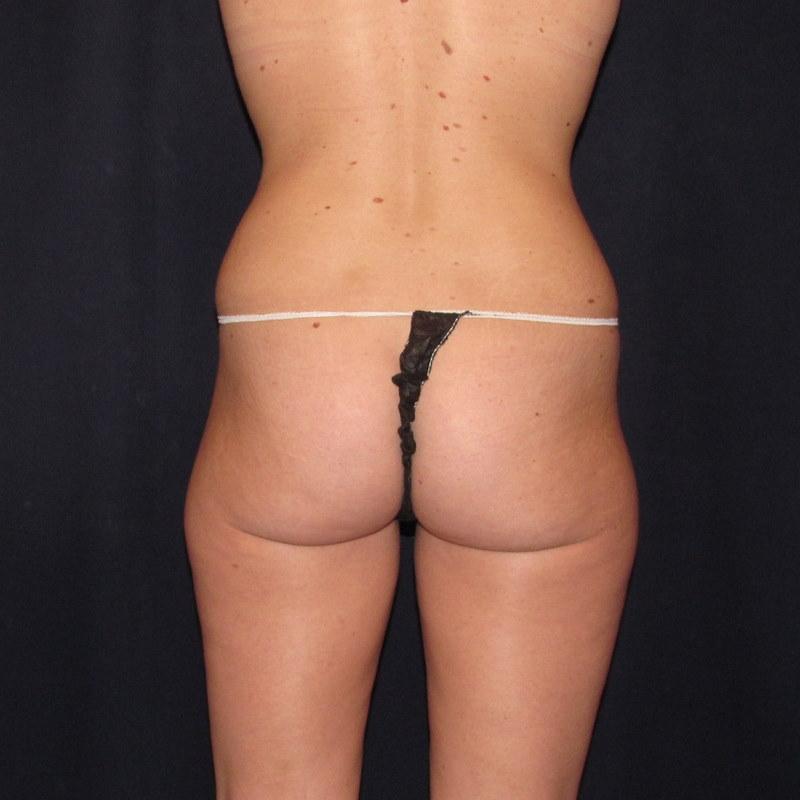lovehandle saddlebag liposuction before