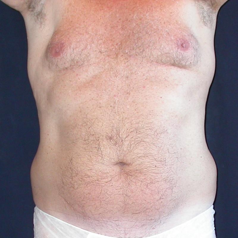 man-boob love handle liposuction before