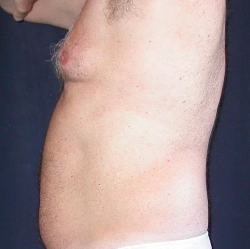 man-boob lovehandle liposuction before