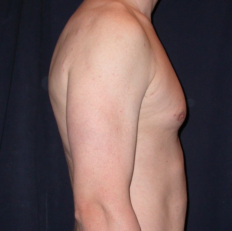 man-boob liposuction before