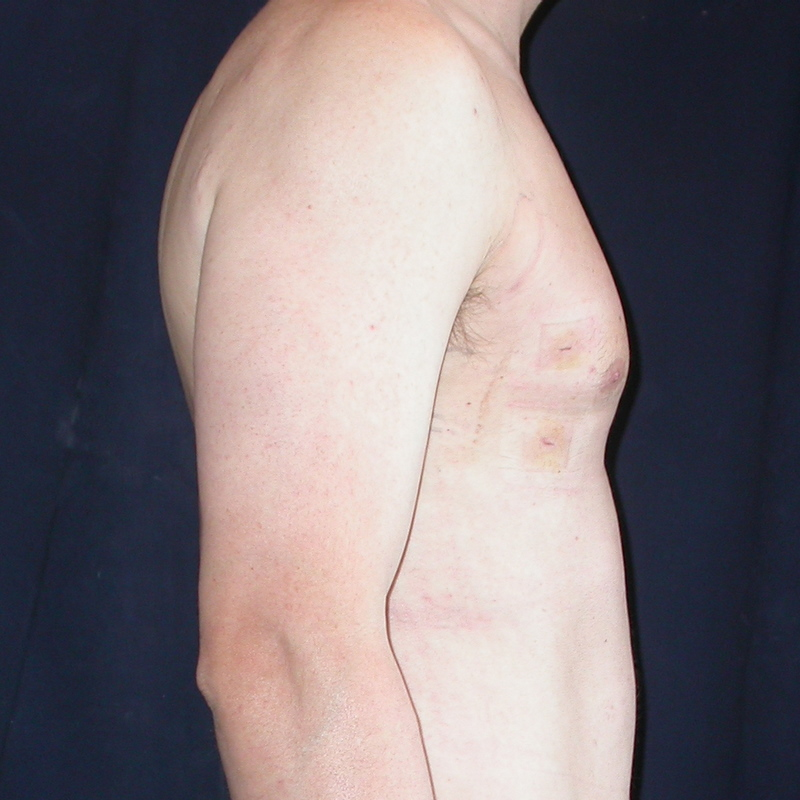 man-boob liposuction after