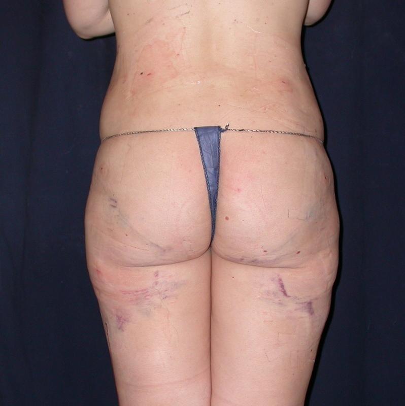 lovehandle saddlebag liposuction after