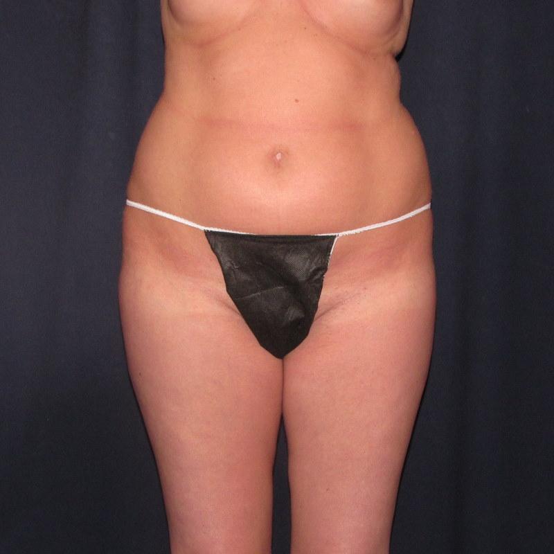 abdomen liposuction before