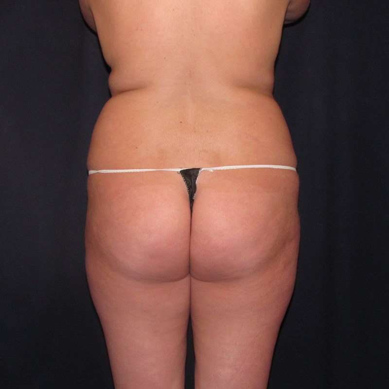 lovehandle liposuction before