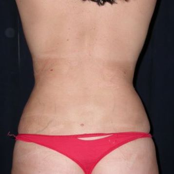 lovehandle liposuction after