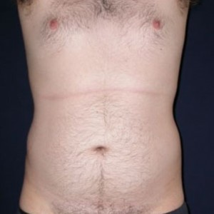 abdomen liposuction before